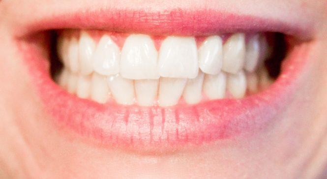 Krásný úsměv díky fixním rovnátkům